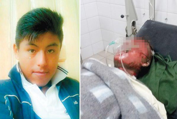 A la izquierda, Javier Canchi en vida. A la derecha, en sus momentos de agonía en el hospital Viedma.