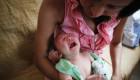 La condición causa que los bebés nazcan con una cabeza anormalmente pequeña. (Crédito: Mario Tama/Getty Images)