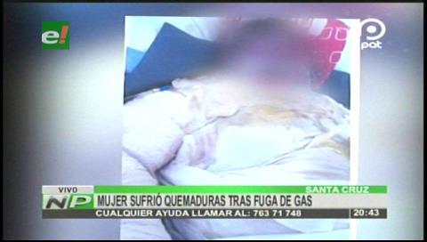 Mujer sufrió quemaduras por explosión de garrafa