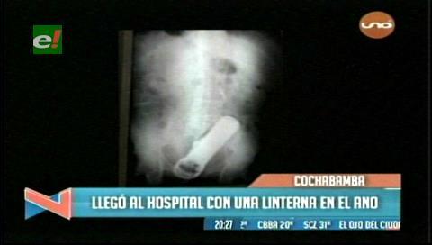 Cochabamba: Sujeto ingresa al Hospital con una linterna en el ano