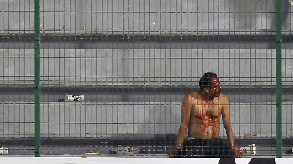 El saldo de los incidentes: cinco hinchas heridos -dos de Tigres y tres de Veracruz- (AFP)