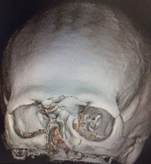 La radiografía el cráneo de Tait