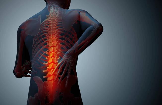 Atento a estas señales sobre tu dolor de espalda. (iStock)