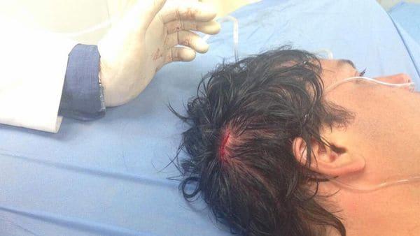 Carlos Paparoni fue herido este lunes