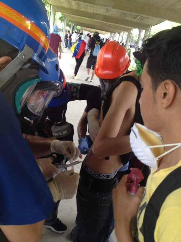 Varios estudiantes resultaron heridos con perdigones