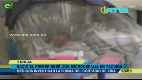 Nace el primer bebé con microcefalia en Yacuiba