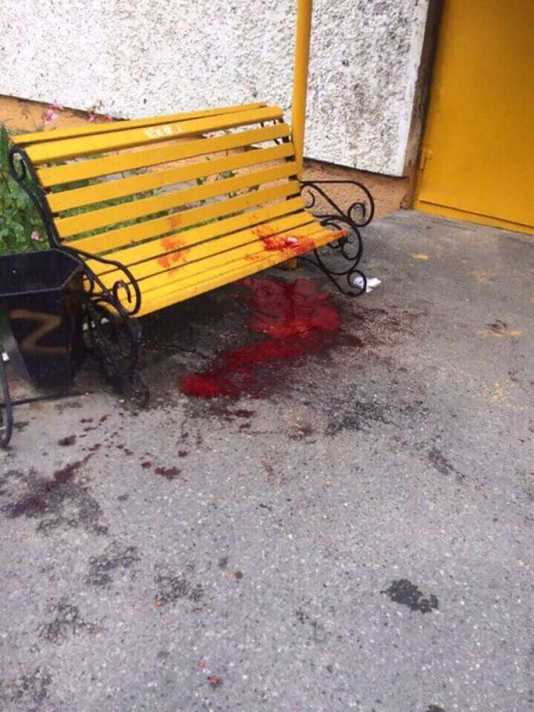 Un hombre armado con un cuchillo apuñaló a ocho personas en la calle en la ciudad rusa de Turgut