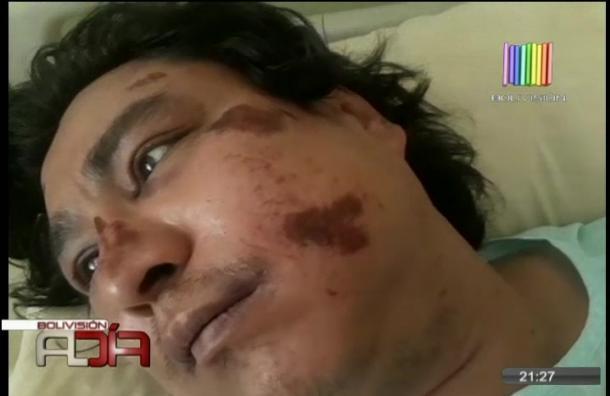 Fue golpeado por dos amigos al salir de una fiesta