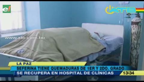 Mujer que fue quemada por su esposo se recupera en el Hospital de Clínicas