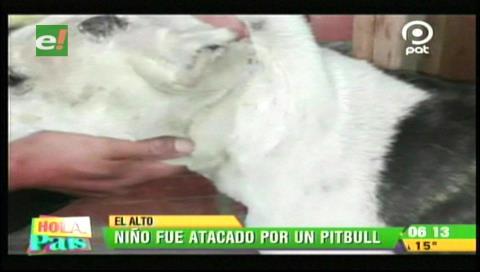 El Alto: Niño sale a comprar pan y es atacado por un pitbull