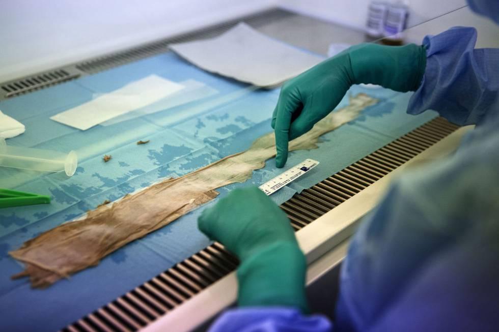 Los médicos cultivaron casi un metro cuadrado de piel para el trasplante.