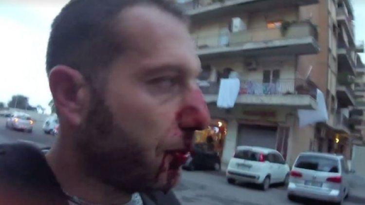 El periodista Daniele Piervincenzi después dela agresión (Rai)