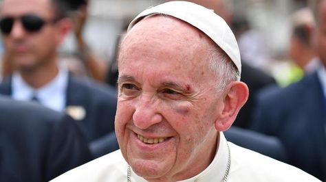 El papa Francisco muestra el golpe accidental que se dió en el Papamóvil durante su visita a Cartagena, Colombia. Foto: EFE