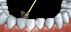 A clear plastic is placed between the tooth being treated and its neighbouring tooth. Composite resin is put on the tooth in layers.