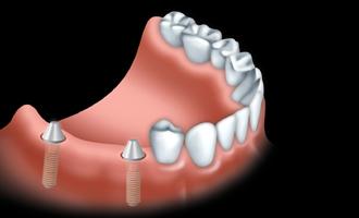 Implant 00
