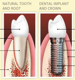single tooth implants [ 1157 x 858 Pixel ]