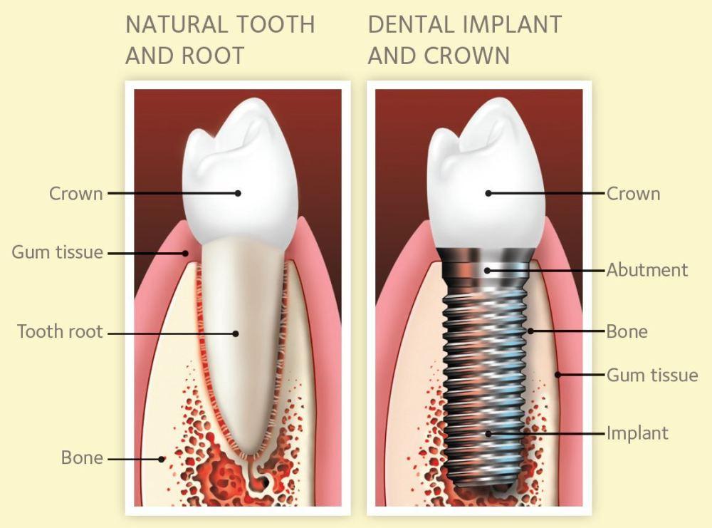 medium resolution of single tooth implants