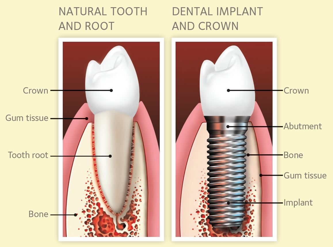 hight resolution of single tooth implants