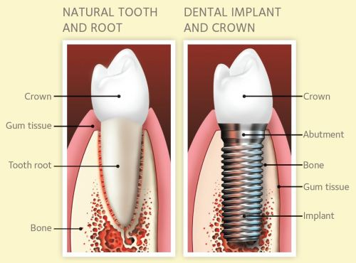 small resolution of single tooth implants