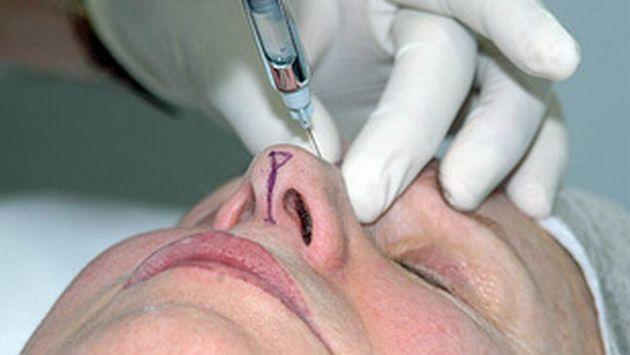 Pese a la crisis económica, los españoles realizan gastos en cirugías estéticas. (SEME)