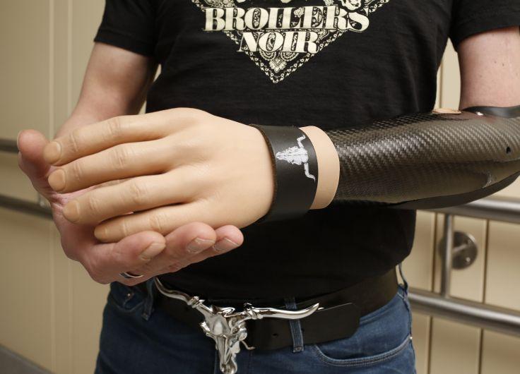Resultado de imagen para manos bionicas sin copyright