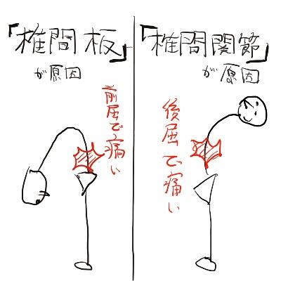 f:id:yoshimatsutakeshi:20161231153522j:plain