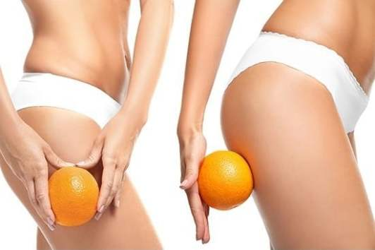 How To: Effectively Getting Rid of Cellulite