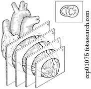 Clipart of Simplified heart anatomy. ks06b_labeled
