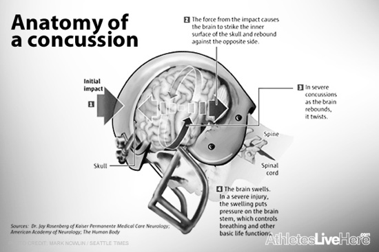Concussions in Youth and Amateur Sports Bobby Looney