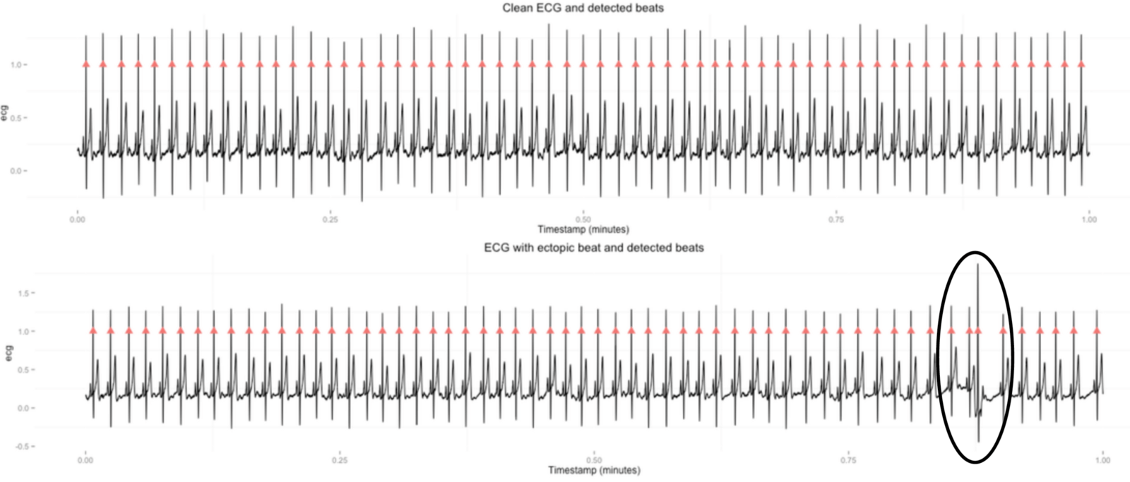 On Heart Rate Variability and the Apple Watch