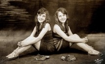 Violet and Daisy Hilton Sisters Conjoined Twins