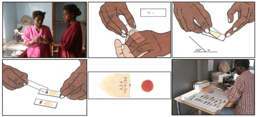 small resolution of malaria diagnosis blood smear workflow image sources microscopist wendy saravagy illustrations of blood smears microscopist examining blood smears