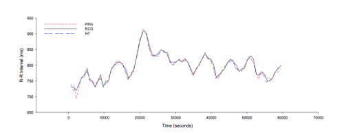 small resolution of simultaneous r r interval of an individual subject during 60 seconds of recording for photoplethysmographic ppg polar chest strap h7 and