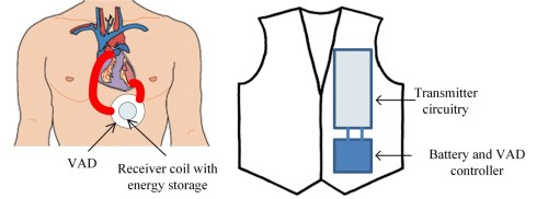 small resolution of diagram illustrating the placement of the wireless vad and the separate garment holding the transmitter and battery designed by professor mahinda