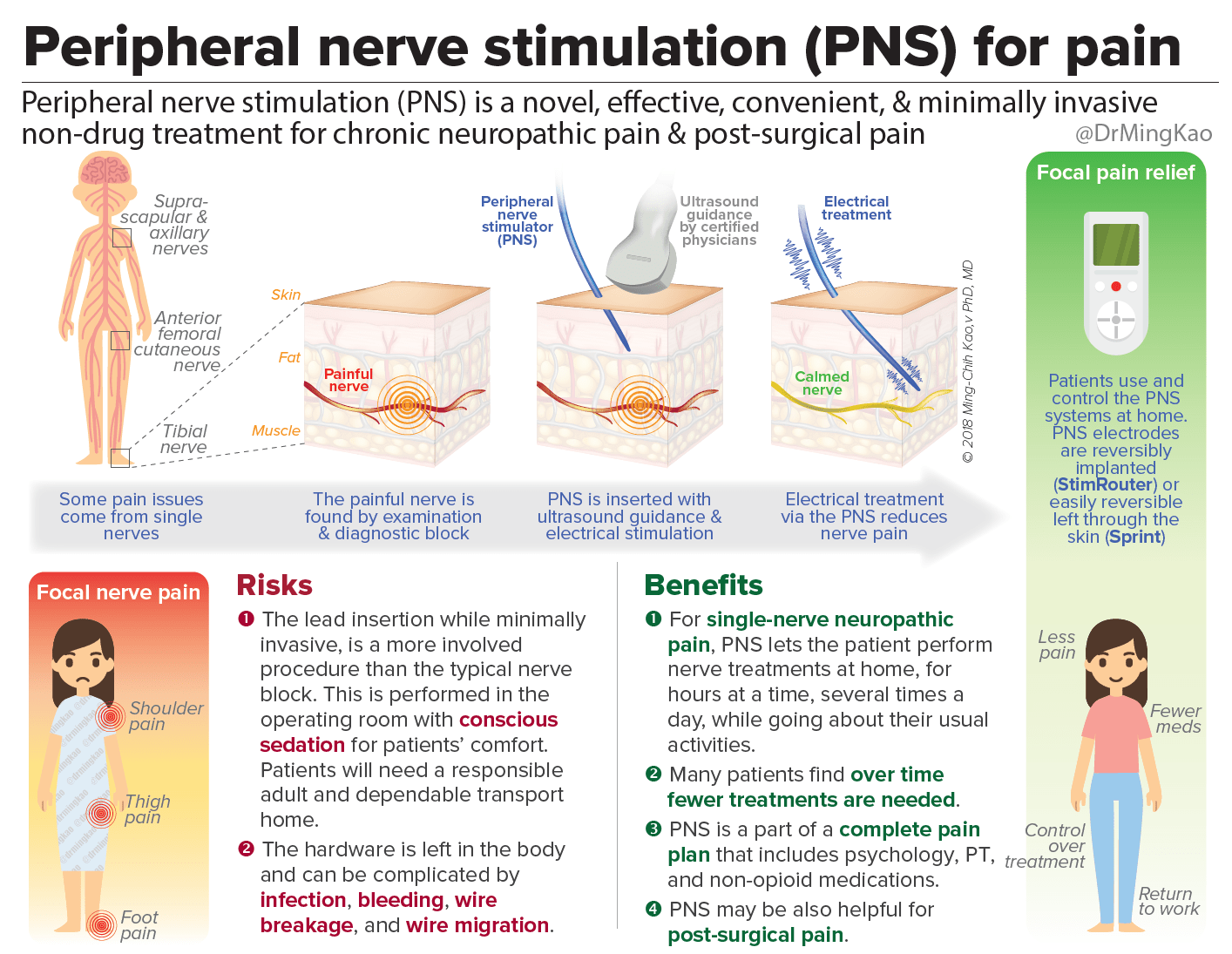 Peripheral nerve stimulation (PNS) for chronic pain & post ...