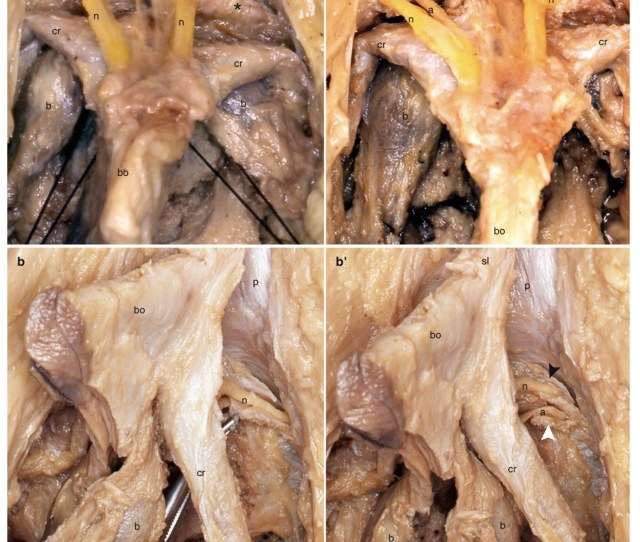 The Following Photos Dont Seem To Show The Nerves As Large Or As Dorsal As They Were In The Clitorises I Have Dissected But You Can See How They Extend