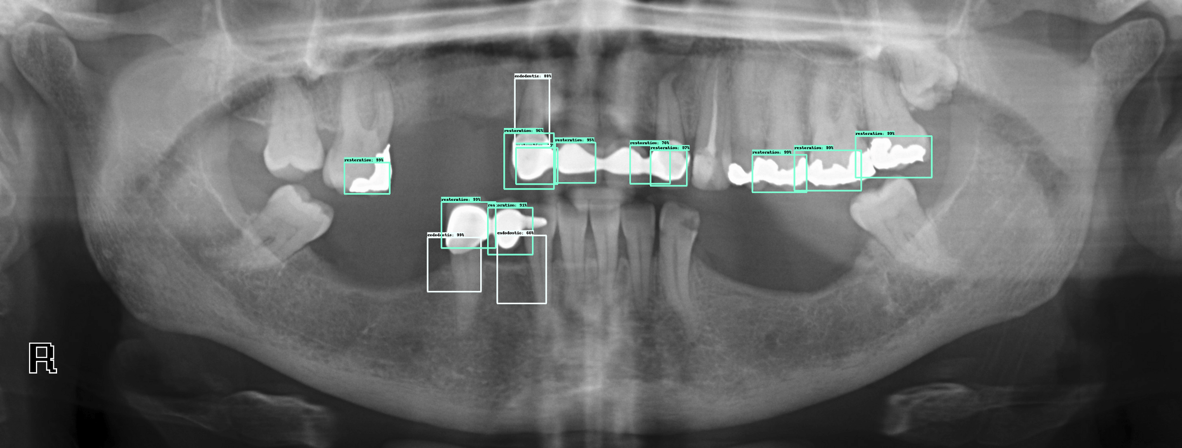 Deep Learning Object Detection On Dental X Rays Clement