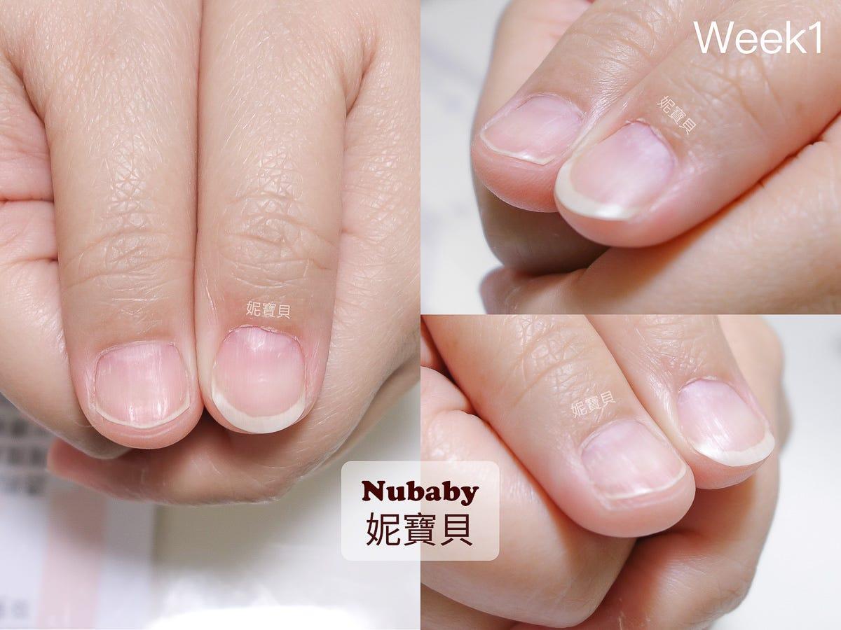 指甲矯正-甲床萎縮 扁平扇形甲的例子 – 妮寶貝指甲-問題指甲 ...