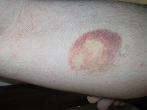 mysterious bruise