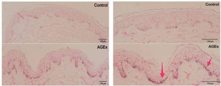 黑色素生成-糖化終產物-AGEs