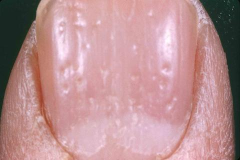 A Non Invasive Technique Designed For The In Vivo Microscopic Examination Of Pigmented Skin Lesions Can Also Be To Evaluate Nail Psoriasis Figure