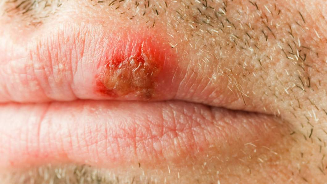 Dry Patch On Lip Or Cold Sore | Julakutuhy co