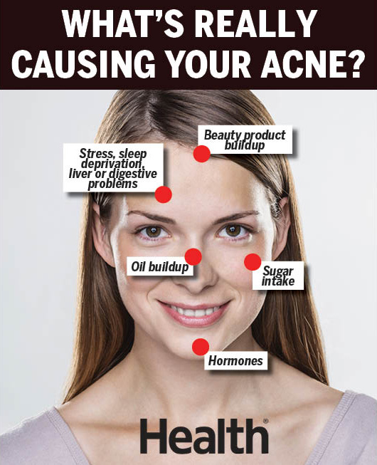 hormonal acne diagram lighting contactor wiring with timer face mapping what can tell you about your if consistently break out on jaw or chin