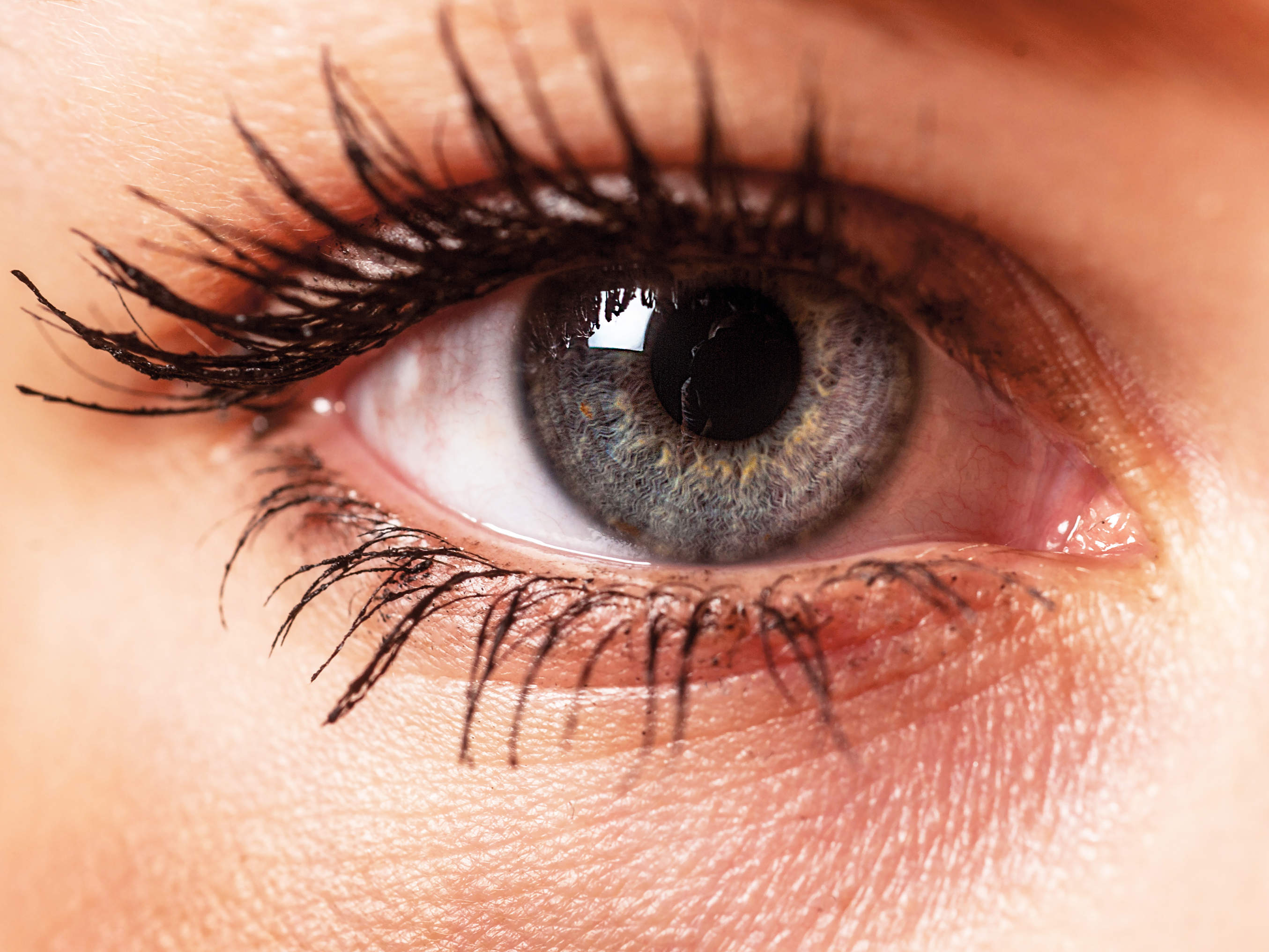 eye health conditions symptoms