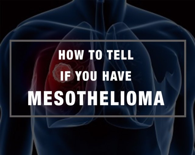 how-to-tell-if-you-have-mesothelioma
