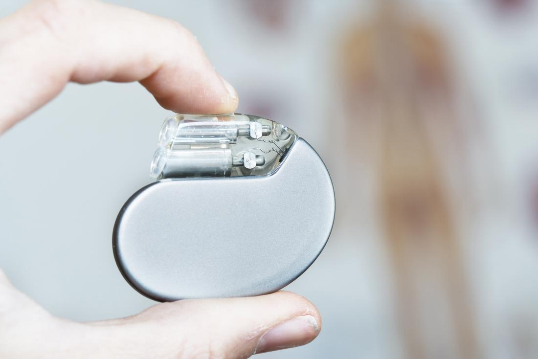 A doctor may recommend a pacemaker to treat bradycardia.