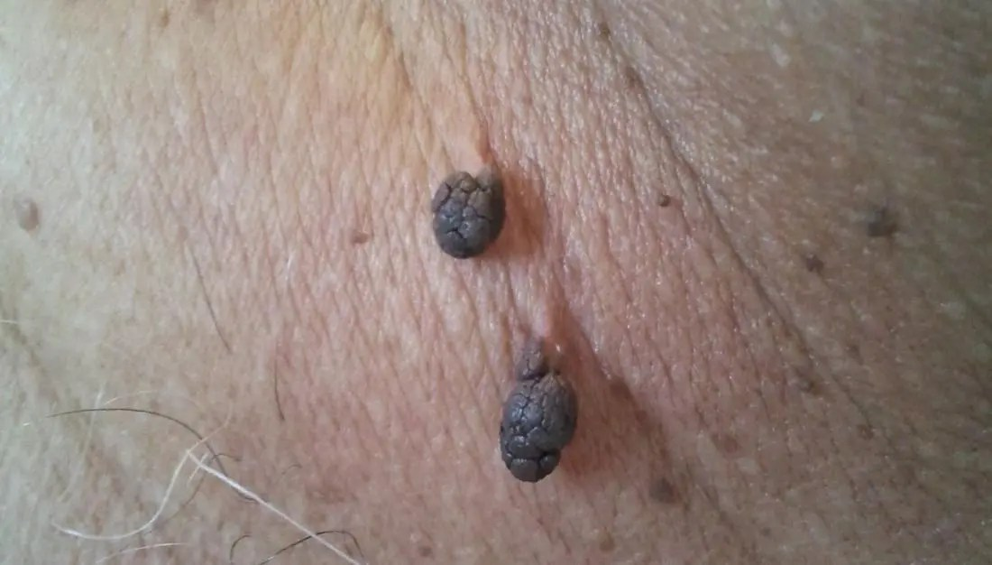 Skin tags, Grook Da Oger, own work, 2012 (wikicommons)