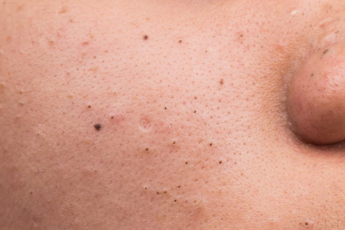 Blackheads are pockets of oxidized melanin on the surface of the skin.