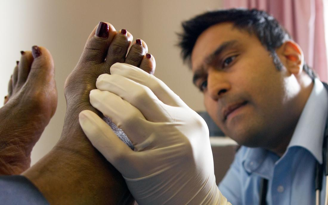 a doctor looking a patients foot because of a suspected foot melanoma
