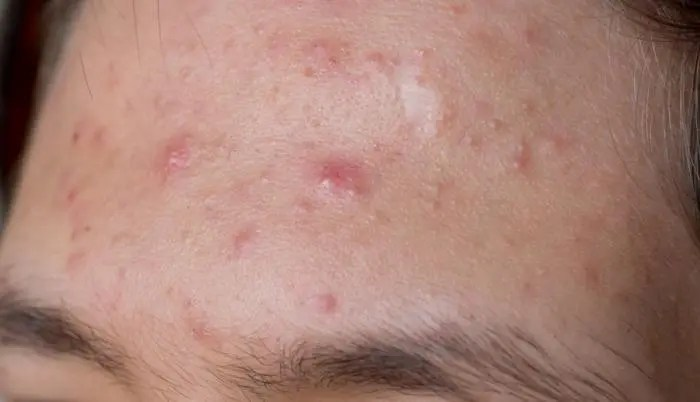 Cystic Acne Causes Symptoms And Treatments